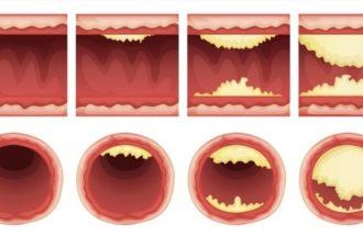 10 продуктов, которые почистят артерии
