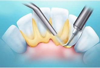 как убрать зубной камень без стоматолога