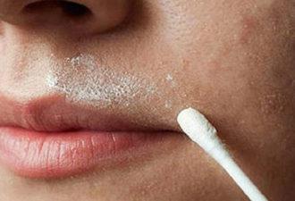 избавиться от волосков над верхней губой