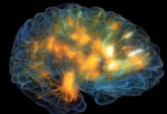 Какого возраста ваш мозг