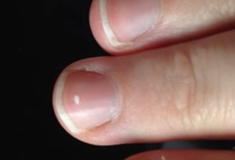 точки палец
